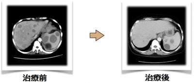 がん免疫療法レントゲン